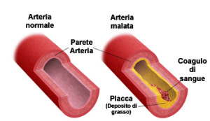 arterie_pressione_grasso